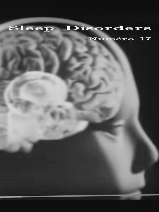 SLEEP DISORDERS 17
